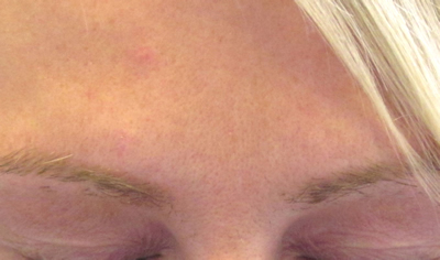 Post treatment frown lines no longer visible