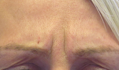 Pre treatment frown lines