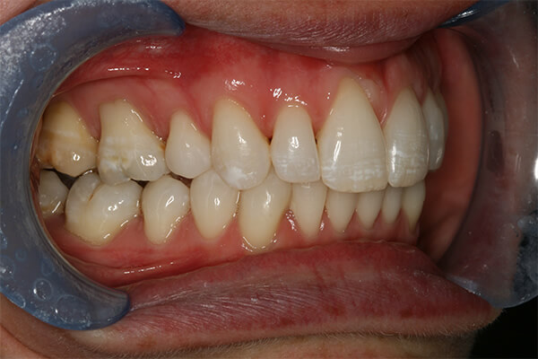 After Invisalign Treatment