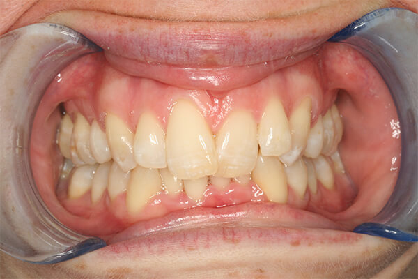 Before Invisalign Treatment