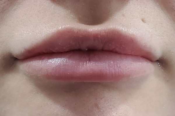 After Lip Fillers in Chessington Surrey