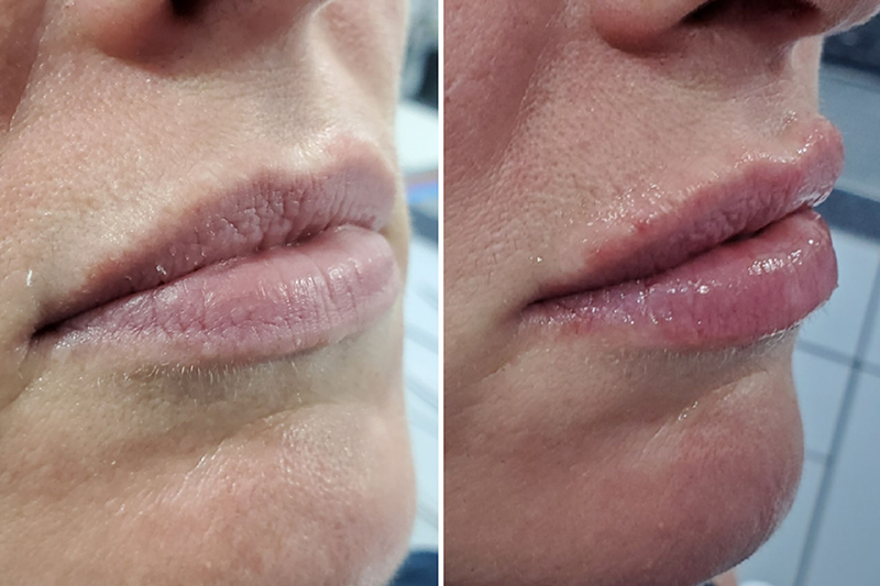 Before and After Juvederm Volift in Chessington Surrey