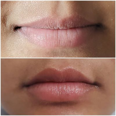 Before and after Lip Fillers in Surrey