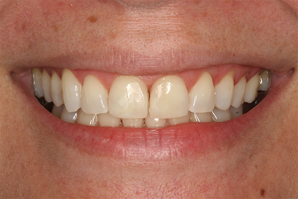 After composite filling treatment