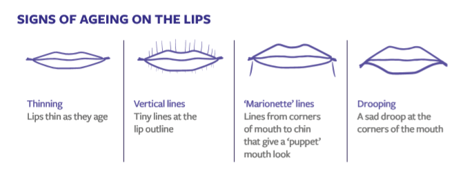Signs of lip aging